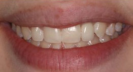 Dental-Implants-After2